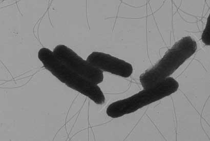 Shown is an image of Salmonella bacteria taken by an electron microscope. Researchers at UC Berkeley have turned this foodborne pathogen into an anti-viral delivery agent. (Sangwei Lu image)